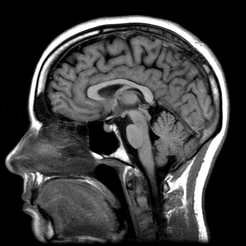 Neuroanatomia e Neurorradiologia